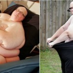 word's-fattest-man-loses-weight